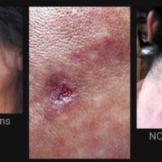 Remedies/Cures for Morgellons Nanotech Infections & Protection Against EMF's